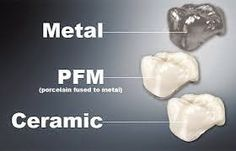 There are three types of crowns. Each type has its own characteristics and qualities: FULL PORCELAIN: FULL-METAL: PORCELAIN-FUSED-TO-METAL