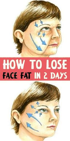 to Lose Face Fat in 2 days Proven Exercises and Home remedies Want to know how to lose fat face in two days? Try out these Proven exercises and home remedies.Want to know how to lose fat face in two days? Try out these Proven exercises and home remedies. Reduce Face Fat, Lose Fat In Face, How To Lose Fat, Reduce Double Chin, Double Menton, Natural Face Lift, Natural Beauty, Muscle Stretches, Fish Face