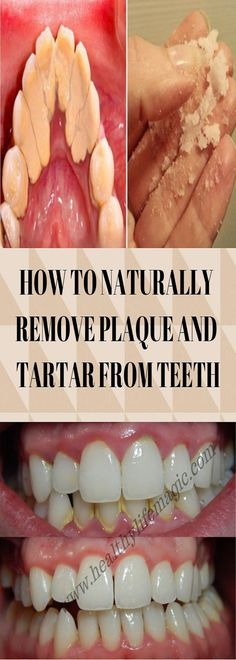 Super how to remove plaque from teeth oral health 43 ideas What Causes Tooth Decay, Remedies For Tooth Ache, Plaque Removal, Mouth Sores, Receding Gums, Oral Surgery, Quites, Mouthwash, Oral Hygiene
