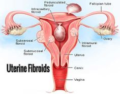 Dr Ajays Homeopathy : Homeopathy for Uterine fibroid can save your Uteru...