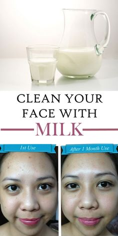 For thousands of years, milk was recognized for its beneficial effects for the skin. Learn about the potential health benefits of milk right now.