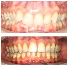 Before and after braces. Actual patient of Impressions Orthodontics.