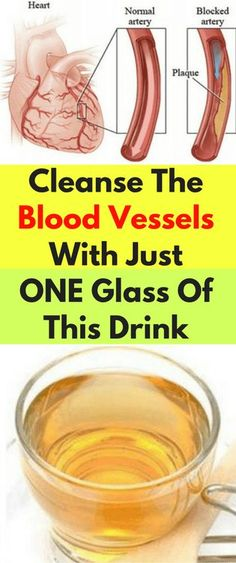 Cleanse The Blood Vessels With Just ONE Glass Of This Drink - Workout Hit