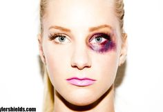 Anna's black eye after accident.