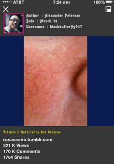 Vitamin D Deficiency And Rosacea 224658 - Rosacea Free Forever.