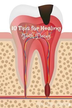 Health Beauty Remedies 10 Tips for Healing Tooth Decay. There are natural ways to health tooth decay. - 10 Tips for Healing Tooth Decay Oral Health, Dental Health, Dental Care, Health Care, Teeth Health, Health Facts, Health Quotes, Health Diet, Teeth Implants