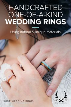 Visit Staghead Designs to design unique wedding rings that are a meaningful symbol of your love! We are artisans who specialize in handcrafting wedding bands from unique, natural and meaningful materials such as antler, wood, turquoise, whiskey barrel and Yellow Nails Design, Yellow Nail Art, Wedding Bands, Our Wedding, Wedding Ring, Wedding Ideas, Bracelets Diy, To Infinity And Beyond, Unique Rings