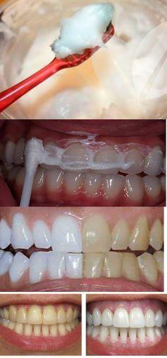 19 Melhores Imagens De Clareamento Dental Caseiro White Teeth