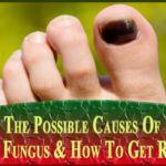 nail fungus remedies how to get rid ~ nail fungus remedies ; nail fungus remedies how to get rid Black Nail, Black Spot On Toenail, Black Toenail Fungus, Black Toe Nails, Toenail Fungus Remedies, Toenail Fungus Treatment, Nail Treatment, Natural Acne Remedies, Skinny
