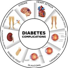 Diabetes is a disease where a person's body is unable to properly store and use glucose. Glucose is a form of sugar and if someone has diabetes their glucose levels will often rise too high. There are basically two different types of diabetes including. Beat Diabetes, Diabetes Meds, Diabetes Mellitus, Type 1 Diabetes, Gestational Diabetes, Diabetes Diagnosis, Diabetes Facts, Diabetes Awareness, Diabetes Food