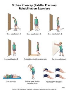 Summit Medical Group - Kneecap Fracture Exercises