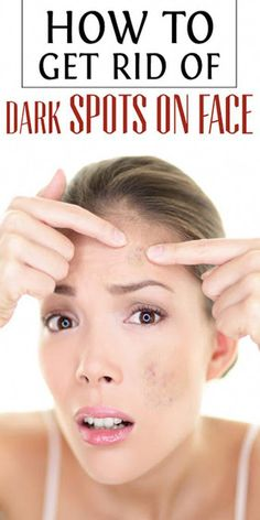 Tips on how to Remove Brown Spots on Face The natural way Sun Spots On Skin, Black Spots On Face, Brown Spots On Hands, Spots On Legs, Dark Spots, Cellulite, How To Get Rid, How To Remove, Sunspots On Face