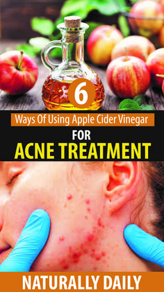How to Use Apple Cider Vinegar for Acne Treatment #applecidervinegarforacnetreatment #acnetreatment #applecidervinegarbenefits #IngrownHairRemedies Oily Skin Treatment, Back Acne Treatment, Oily Skin Care, Skin Care Tips, Acne Remedies, Natural Remedies, Homeopathic Remedies, Vinegar For Acne, Medicinal Plants