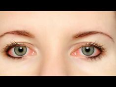 Natural home remedies offer some treatments that can help to get rid of deep sunken eyes efficiently. So here are few tips on How to treat Sunken Eyes. Red Eye Causes, Dry Eyes Causes, Red Eyes Remedy, Pink Eye Treatment, Natural Pink Eye Remedy, Natural Remedies, Sunken Eyes, Bloodshot Eyes, Natural Treatments