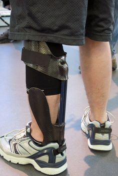 An injured leg can cause so much pain that some wounded veterans consider…