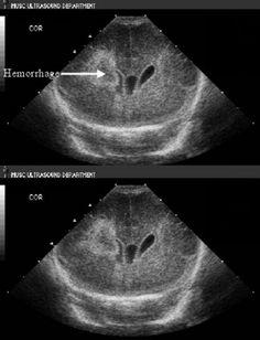 Intraventricular Hemorrhage with periventricular bleed- cranial ultrasound, coronal view