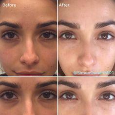 32 Best Under eye fillers images in 2019 | Botox fillers