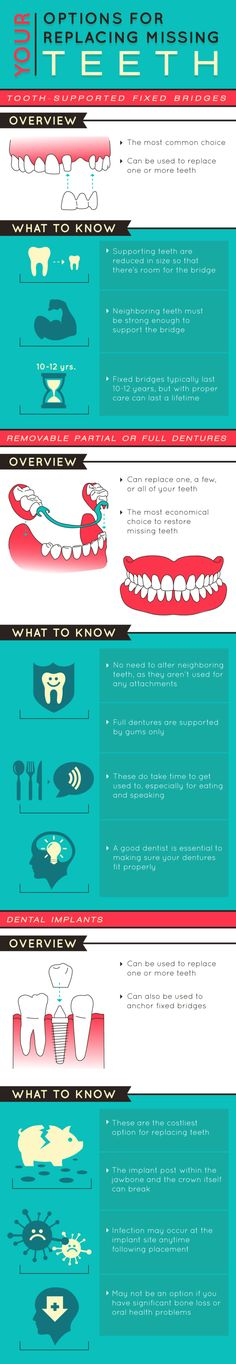 Your Options for Replacing Missing Teeth
