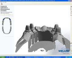 tecnología CAD-CAM para importar datos y diseñar en diferentes materiales, Titanio, Zirconio, Cerámica Feldespaticas http://www.micasadental.com
