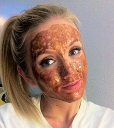 Mix honey & cinnamon for a DIY face mask that will cure dry skin, breakouts, and redness!