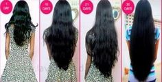 Make your hair grow 1 inch in a week, eliminate frizz and Dandruff.