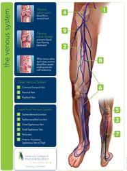 Patient Education Poster: The Venous System