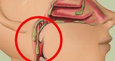 Rinite e sinusite - Cloreto de magnésio - Cura pela Natureza