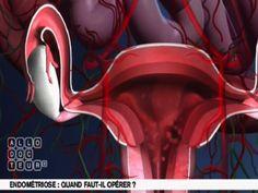 Encore mal diagnostiquée, l'endométriose est une maladie qui touche environ 5% des femmes en âge d'avoir un enfant selon EndoFrance. Elle provoque des douleurs importantes au moment des règles, là où des cellules comparables à celles de l'endomètre se développent anarchiquement.