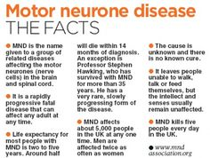 While Parkinson's disease has very distinctive features, it is rather a difficult disease to identify, particularly while it is in its early stages. What Is Motor, What Is Park, Amyotrophic Lateral Sclerosis, Neurological System, Motor Neuron, Fatigue Symptoms, Stem Cell Research, Neurone, Thyroid Problems