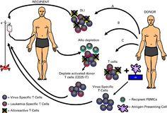 Stem Cell Transplant Leukemia