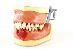 Vintage Dental Tooth Model with Soft Gums and Removable Teeth by ThirdShift - add this dental oddity to your Halloween Party decor, fun for sitting on a snack table!  Creepy!