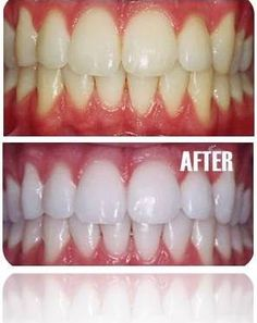 Whiten Your Teeth in 7 Days from Home