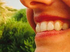 Alineadores en boca