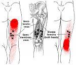Schmerzen am Oberschenkel hinten | The Trigger Point & Referred Pain Guide