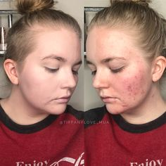 No edits or photoshop!  Just Limelight by Alcone Botanical Foundation in the shade Ivory! No more acne or redness. All about that full coverage, flawless foundation that looks natural. Paraben free, cruelty free, professional makeup.  RCMA, Alcone, onset makeup, makeup kit, side shave