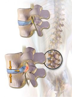 DDD is often triggered after a severe spinal injury, such as a herniated disc.
