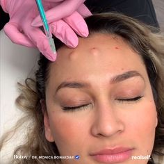 How to reverse cosmetic treatments, from lip fillers to rhinoplasty Facial Fillers, Botox Fillers, Dermal Fillers, Lip Fillers, Cosmetic Treatments, Body Treatments, Beauty Routine Checklist, Beauty Routines, Botox Face