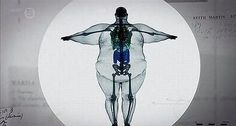 This is the X-ray of a man who weighs 900 pounds. Ceci est le rayon x d'un homme qui pèse 900 livres. Respiratory Therapy, Weird And Wonderful, Wonderful Things, Plastic Surgery, Radios, The Incredibles, Cool Stuff, Random Stuff, Random Things