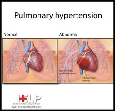 Triple therapy shows promise for severe PAH Results of a small pilot study among patients with severe pulmonary arterial hypertension (PAH) support the long-term benefits of upfront triple combination therapy, French researchers report. Respiratory Therapy, Respiratory System, Atrial Septal Defect, Interventional Radiology, Cardiac Nursing, Heart And Lungs, Pulmonary Hypertension, Cardiology, Anatomy And Physiology