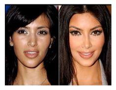 Kim Kardashian Before and After Nose Job   Kim Kardashian Nose Job