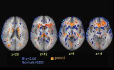 PET scans of a patient with BDD compared with healthy subjects. Yellow indicates areas in which BDD patients had higher metabolic rates than the normal controls; blue indicates areas in which the normal controls had higher metabolic rates. One theory holds that the same areas involved in obsessive-compulsive disorder (OCD), such as the orbital frontal and cingulate cortex, are also affected in BDD. Preliminary MRI scans suggest this may be true, but the research has just begun.