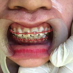 Braces Transformation, Braces Colors, Gold Chain Design, Teeth Braces, Orthodontics, Cute Girls, Unique, Ideas, Teeth Retainer