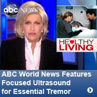 ABC World News features Focused Ultrasound for Essential Tremor