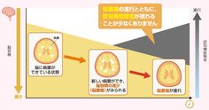 MS発症後はどうなるのか 多発性硬化症.jp ~多発性硬化症に関する情報を紹介するサイト~
