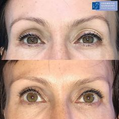 Blepharoplasty (Eyelid Surgery) by Miles Berry at our London clinic. Please call 020 7486 6778 or visit our website for further information 💙 Anaesthetic: : LA (Local) 💙 Hospital Stay: Daycase 💙 Post-Operative: 2 week recovery 💙 Duration of surgery: 60 mins #blepharoplastyLondon #eyelidsurgeryLondon #blepharoplastyresults #eyelidsurgeryresults Facial Cosmetic Surgery, Eyelid Surgery, Clinic, Recovery, Eyebrows, Berry, How To Remove, Cosmetics, London