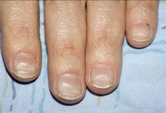 <p>Beau's lines: a ridged or grooved line that runs horizontally across the nail</p>
