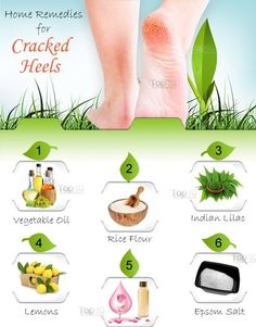 Cracked heels are a very common problem and can range in severity from a cosmetic issue to a painful problem. In addition to dry, thickened skin, the problem may be accompanied by symptoms like redness, itching, inflammation and peeling Heal Cracked Heels, Cracked Skin, Top 10 Home Remedies, Natural Remedies, Skin Care Regimen, Skin Care Tips, Aloe Vera For Skin, Coconut Oil For Skin, Soft Feet