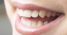 Why cosmetic dentistry in Melbourne is the best solution to your oral problems?  #CosmeticDentistMelbourne