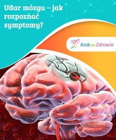 Udar mózgu – jak #rozpoznać symptomy?  #Uprawianie sportów zapobiega dolegliwościom, #takim jak udar mózgu. Pomaga usprawnić pracę serca i rozładować stres, który nierzadko jest czynnikiem wywoławczym #wielu chorób. Flow, Vegetables, Health, Health Care, Vegetable Recipes, Veggies, Salud