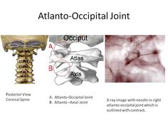 atlanto- occipital joint - Synovial/ Diarthrotic Joint - Articulates with the Occipital Condlyes and the superior articular facets of Atlas Vertabrae - Movements Flextion/ Extension & Side/ Lateral Flexion Cervical Vertebrae, Outline, Medical, Upper Body, Therapy, Active Ingredient